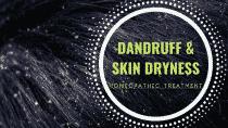 Homeopathic-Dandruff-Treatment