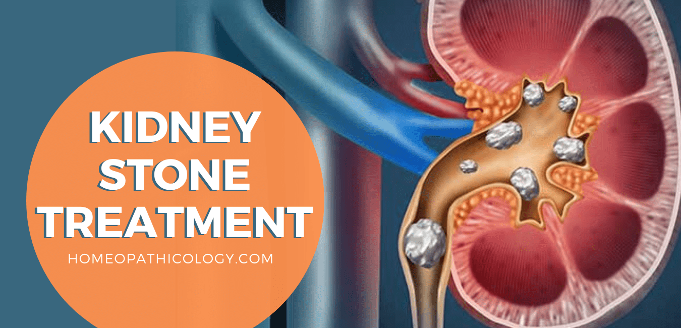 HOMEOPATHIC MEDICINE FOR KIDNEY STONE PAIN TREATMENT